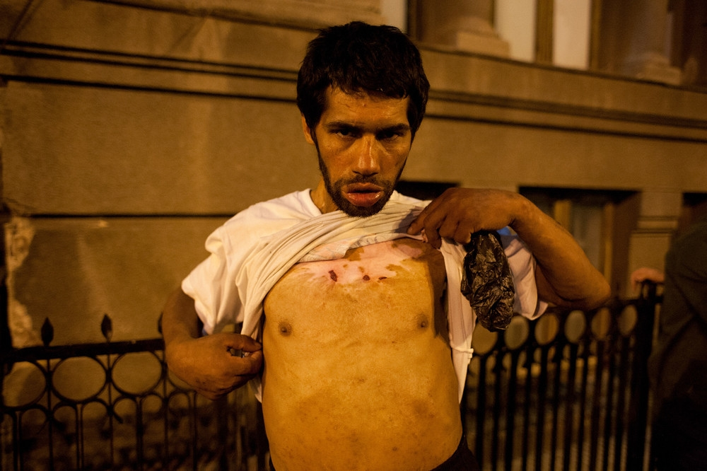 Florin is a Roma man who has been living on the street since 1995 and uses Aurolac and injecting legale. The injuries on his chest are old burn wounds that never heal, from when he set himself on fire in 2010.